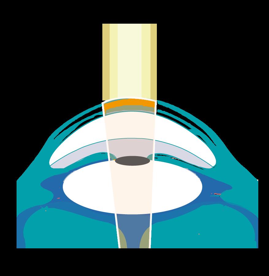 cirugía láser refractiva puerto montt